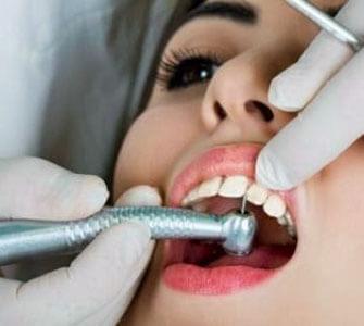 Εμφράξεις (σφραγίσματα) - Oral Care cdbc91ab9d4